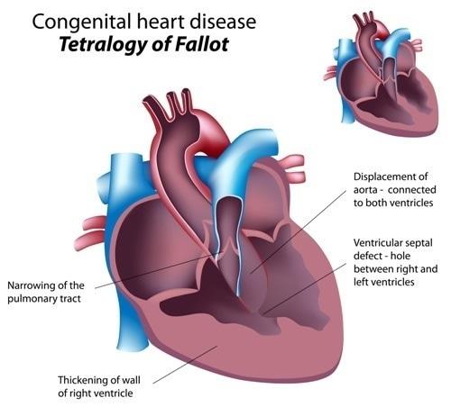 Congenital heart disease : Tetralogy of Fallot. Image Credit: Alila Medical Media / Shutterstock