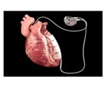 Implanted device uses microcurrent to exercise heart muscle in cardiomyopathy patients