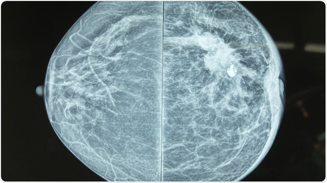 Mammography image showing left breast calcification to suggest malignancy. Image Credit: Casa Nayafana / Shutterstock