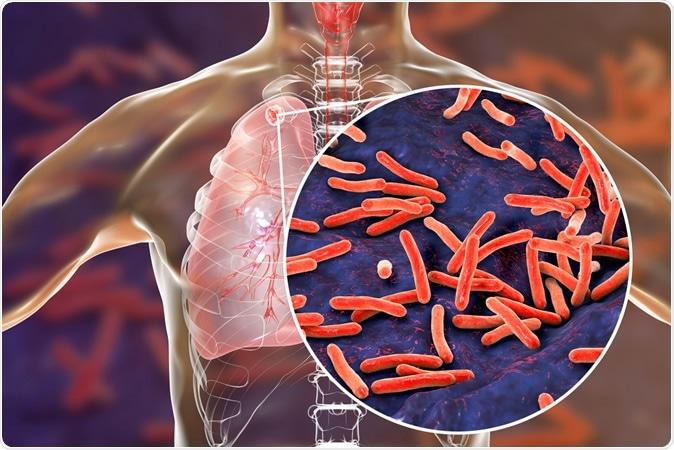 Tuberculose secundária nos pulmões e na opinião as bactérias da tuberculose de Mycobacterium, crédito do close-up da ilustração 3D: Kateryna Kon/Shutterstock