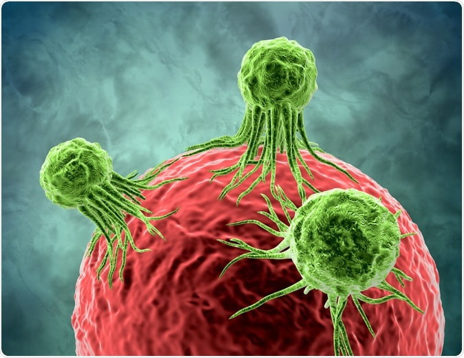 Tumor cancer cells attacking and growing on human cell 3d rendering. Illustration Credit: Illustration Forest / Shutterstock