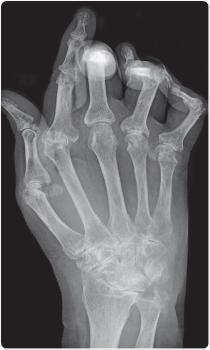 Typical X-ray of hand with advanced rheumatoid arthritis. Bone erosion, cartilage degradation and bone displacement are classic features of this disease (from Bernd Brägelmann via Wikimedia Commons)