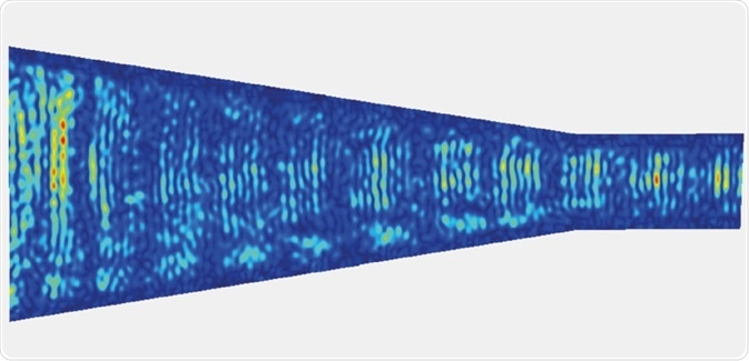 Vibrometer scan revealing the amplitude of vibrations in a phononic cone, able to focus the energy at specific locations. Scan of ca 190 000 points at 9.35 MHz. [Reboud J., et al, Lab Chip, 2012, 1268-73] – scale bar is 200 μm.