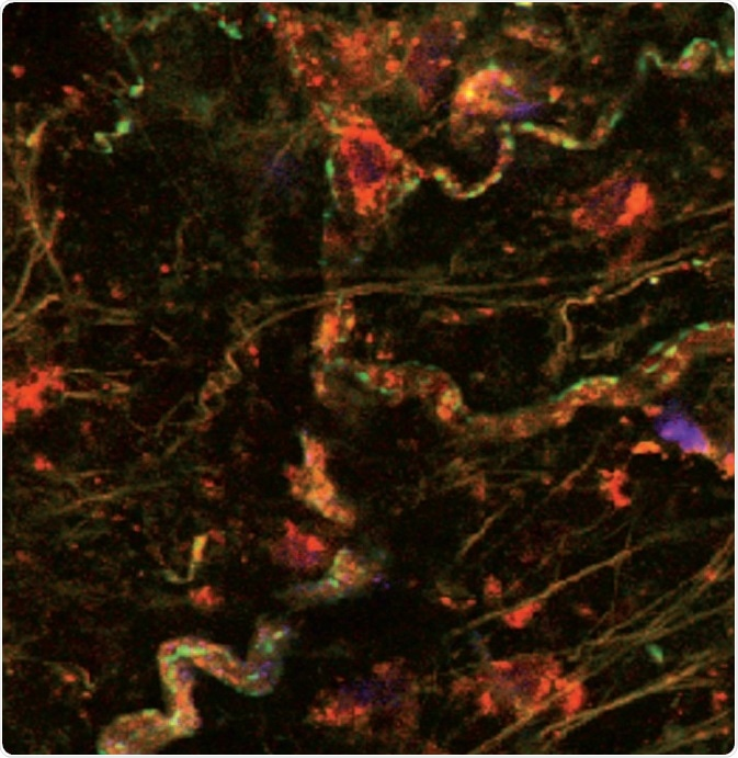 Fluorescent ligand binding in the perivascular nerve. Fluorescent ligand, Tocrifluor T1117 (Cat. No. 2540), shows GPR55 receptor (red/orange) expression in perivascular nerve cells and blood vessels, additional staining illustrates expression of α1‑adrenoceptors (green). Image kindly provided by Dr Craig Daly, University of Glasgow (see Daly et al (2010), for further reference).