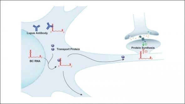 Antibody target implicated in neuropsychiatric symptoms of lupus discovered