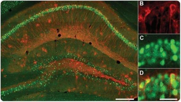Negative memory hippocampal engrams could underlie cognitive symptoms of depression