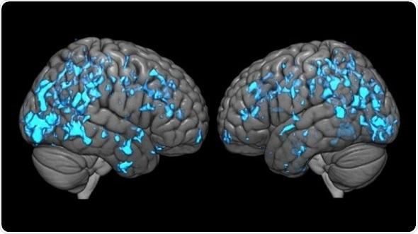Johns Hopkins researchers reveal why deep brain stimulation improves Parkinson's symptoms