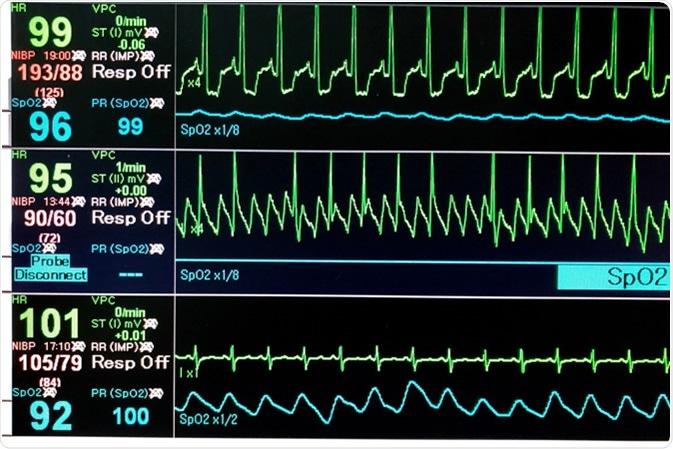 Vital sign EKG monitor. Image Credit: Duangnapa Kanchanasakun / Shutterstock