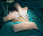 """Claims that cesarean sections increase the risk of autism are """"highly unlikely"""", say experts"""
