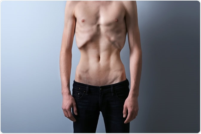 Male with anorexia. Image Credit: Africa Studio / Shutterstock
