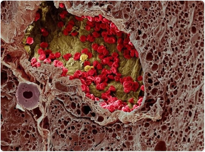 A blood vessel (center) provides essential nutrients to a melanoma tumor (left) in this artificially colorized microscopy image. Image DOI: 10.7295W9CIL38960 Researchers at the University of Tokyo studied a cell membrane receptor, LRP1, and an enzyme, tPA, for their roles in metastasis of melanoma in mice. Image Credit: Wellcome Images CC-BY-NC-ND http://www.cellimagelibrary.org/images/38960