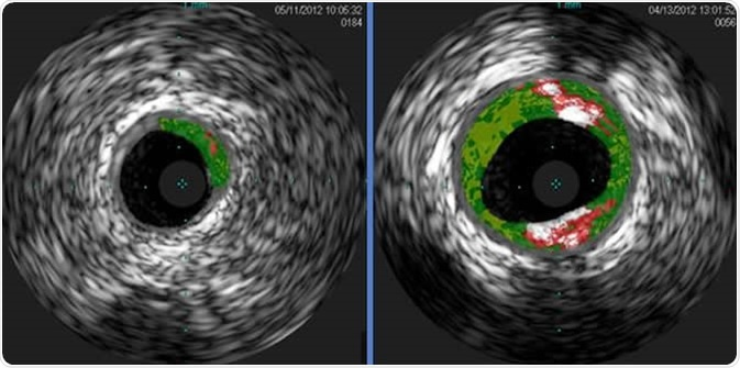 Shown are cross-sectional ultrasound images of coronary arteries from patients enrolled in a study. Plaque buildup (colored areas) in an artery from a patient that lacks sensitivity to red meat allergen (left) is much lower than plaque levels in an artery from a patient with sensitivity to red meat allergen (right). Courtesy of Angela Taylor, M.D., University of Virginia Health System