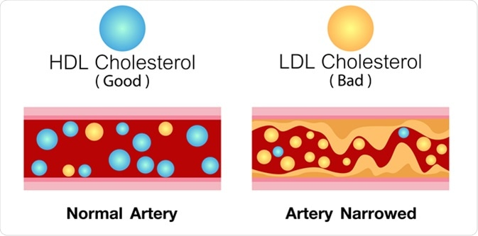 HDL cholesterol and LDL cholesterol in artery. Image Credit: Ching Design / Shutterstock