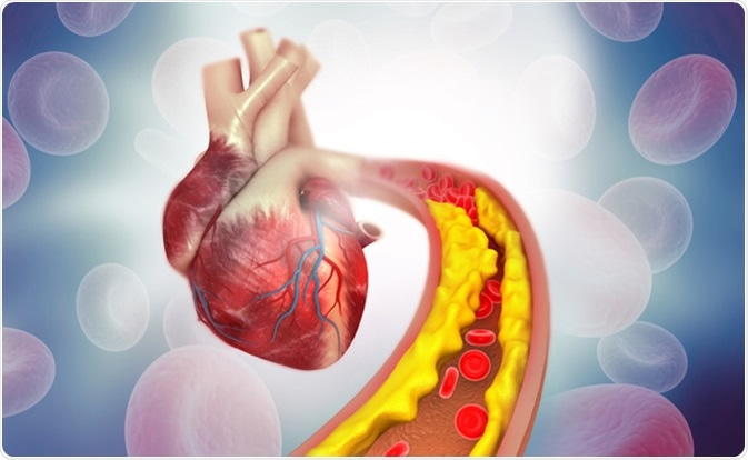 Cholesterol plaque in artery with human heart anatomy. Image Credit: Explode / Shutterstock