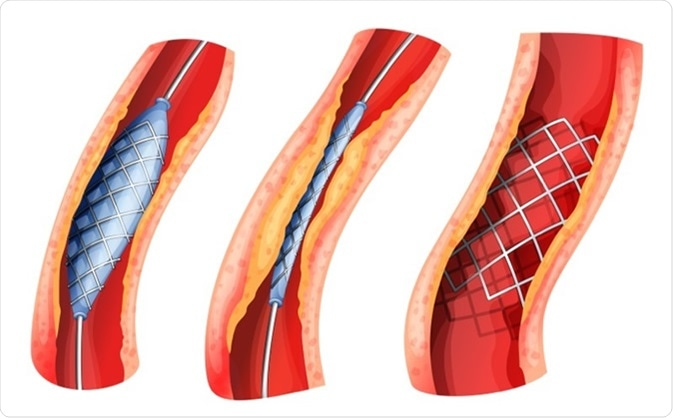 Illustration of a stent used to open blocked artery  Image Credit: BlueRingMedia / Shutterstock