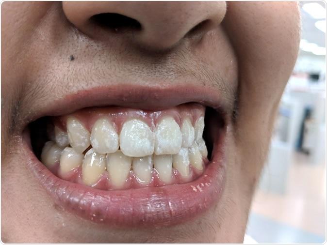 Denti con la vernice del fluoruro. Credito: Punrit Thongma-en/Shutterstock