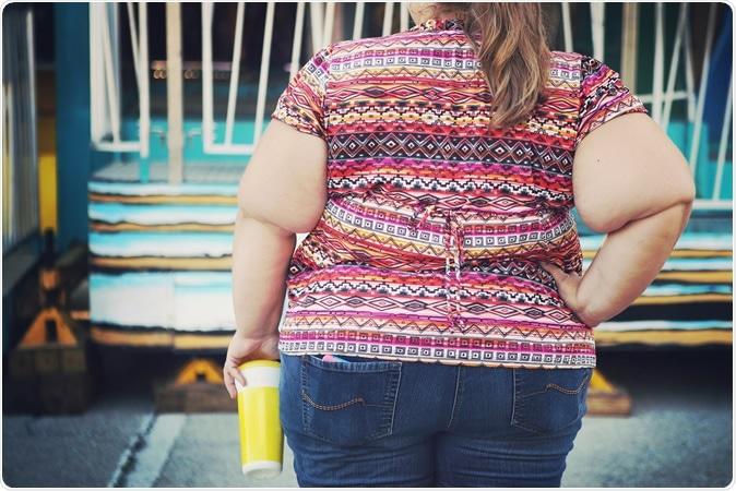Ha habido un movimiento de la carga obesidad-asociada del cáncer a grupos de la misma edad más jovenes. Haber de imagen: Susana Tucker/Shutterstock