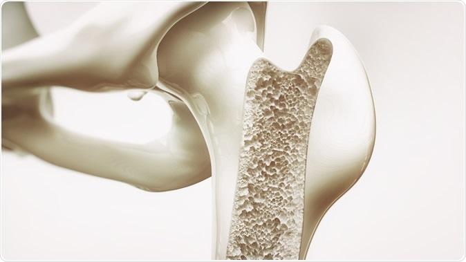 Osteoporosis stage 3 of 4 - upper limb bones - 3d rendering - Illustration Credit: Crevis / Shutterstock