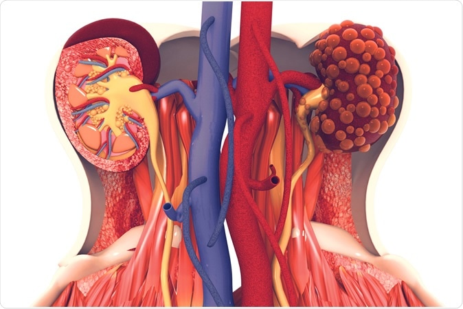 Doença renal. 3d ilustração, crédito: Luz de cristal/Shutterstock