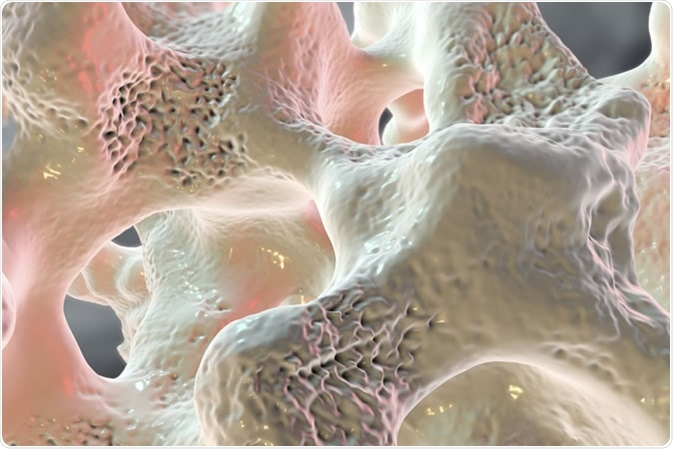 Spongy bone tissue affected by osteoporosis, 3D illustration - Image Credit: Kateryna Kon / Shutterstock