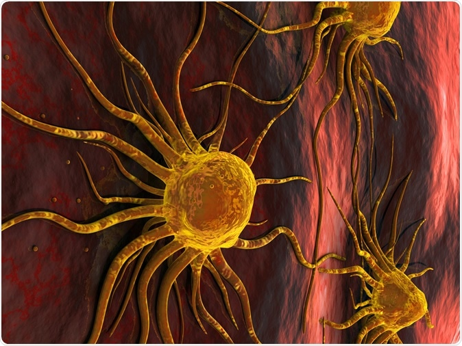 Breast Cancer Cells. Image Credit: Ancroft / Shutterstock