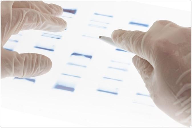 Ricercatore che esamina la diapositiva della trasparenza di sequenza del DNA. Credito: Shawn Hempel/Shutterstock