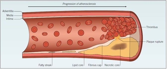 Atherosclerosis. The development of atherosclerosis within a blood vessel wall starts as a fatty streak, composed of a small cluster of lipid-laden macrophages, which progresses over time to form a lipid pool within the vessel wall. Cell debris from apoptotic foam cells within the lipid pool forms a necrotic core. The fibrous cap separates the lipid pool from the blood, but rupture of this cap exposes the thrombogenic plaque contents to circulating blood, triggering thrombus formation.