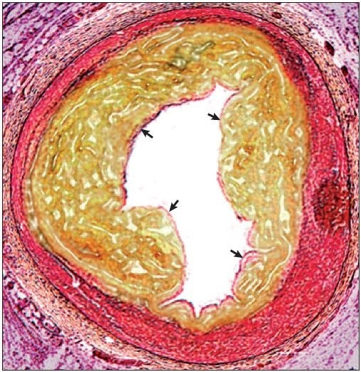 Section through a coronary artery with an atherosclerotic plaque. Lipid accumulation and inflammatory cell invasion (depicted in yellow) within an arterial wall (pink) causes vessel narrowing and stenosis. A thin fibrous cap (arrows) separates the plaque contents from the circulating blood. Rupture of the fibrous cap exposes these thrombogenic contents to the blood, triggering thrombosis.