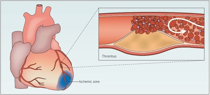Myocardial infarction. When an atherosclerotic plaque ruptures, blood flow is greatly impeded, and thrombosis may occur. Consequently, the artery is occluded and the supply of oxygen to the heart is restricted. Ischemia results, and if it is sustained the heart muscle tissue may become damaged and die. The likelihood of plaque rupture is influenced by several factors, including elevated blood pressure and degree of inflammation. This damaged tissue does not function fully; acute myocardial ischemia results in ionic and metabolic disturbances that affect the membrane and action potentials of myocytes. Arrhythmias and heart failure may occur as a result of the slower conduction of electrical impulses.