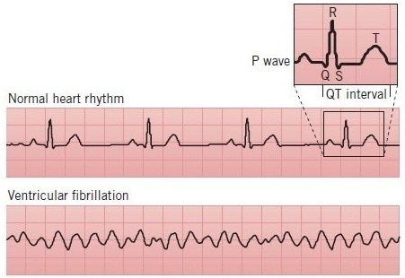 ECG traces of arrhythmia. Arrhythmias can be detected by electrocardiography (ECG or EKG), which measures the electrical activity of the heart. A normal ECG trace will have a consistent, regular form, representing the different intervals involved in cardiac rhythm. This includes the QT interval, during which the left and right ventricles depolarize and repolarize. During ventricular fibrillation, a type of arrhythmia, the heart does not contract in an ordered fashion; the absence of normal heart rhythm is apparent when comparing ECG traces.