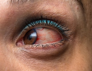 International coalition develops classification criteria for 25 subtypes of uveitis