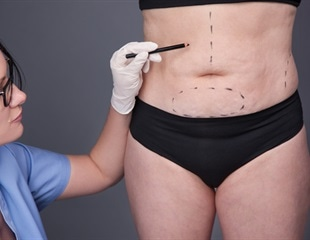 Study:  Weight loss surgery linked to increased risk of bone fractures