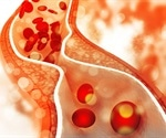 Diabetic mice benefit from increased 'good' cholesterol levels