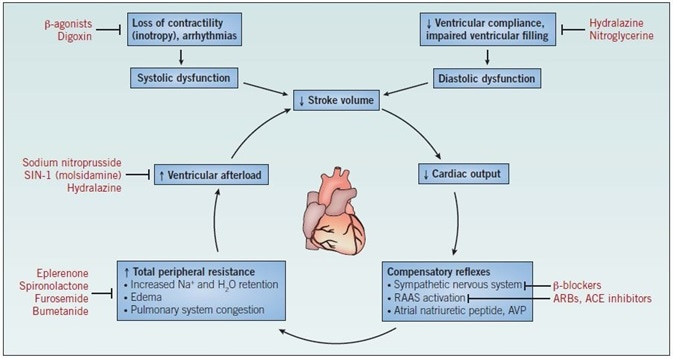 The mechanism of heart failure. Abbreviations: ACE – angiotensin-converting enzyme; ARBs – angiotensin II receptor blockers; AVP – arginine vasopressin; RAAS – reninangiotensin- aldosterone system.
