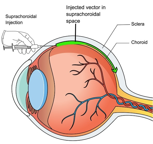 Johns Hopkins researchers develop new way to deliver sight-saving gene therapy to the retina