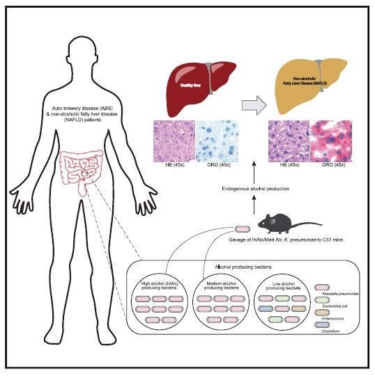 Researchers discover link between alcohol-producing gut bacteria and NAFLD