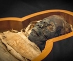 Mummies show atherosclerosis was prevalent in ancient times