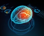 Brain-computer interface: huge potential benefits and formidable challenges