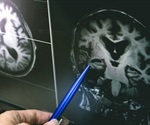 New insight and target for Alzheimer's disease
