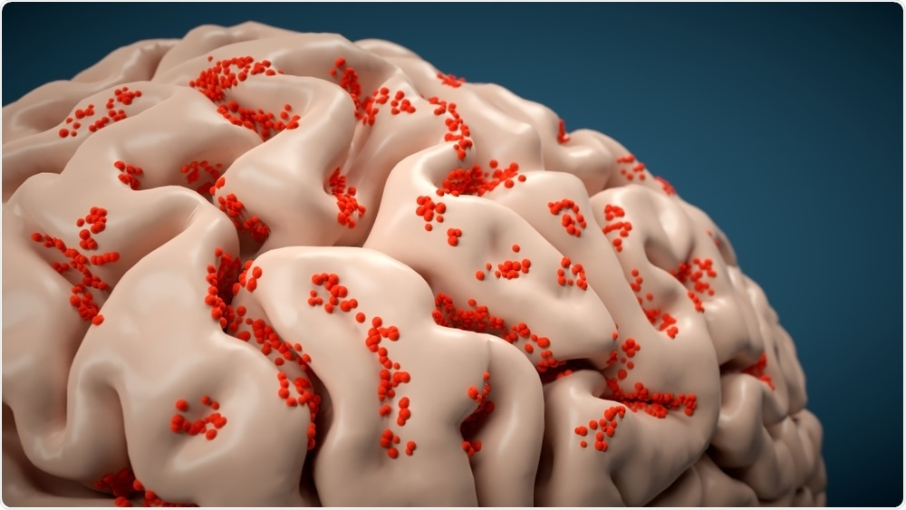 Eastern Equine Encephalitis (EEE) virus attacking brain
