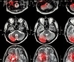 MRI shown to be a powerful tool in the detection and prevention of minor stroke