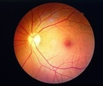 New study identifies potential enzyme target for diabetic retinopathy