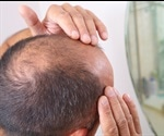 Electric baseball cap may help to reverse male pattern balding