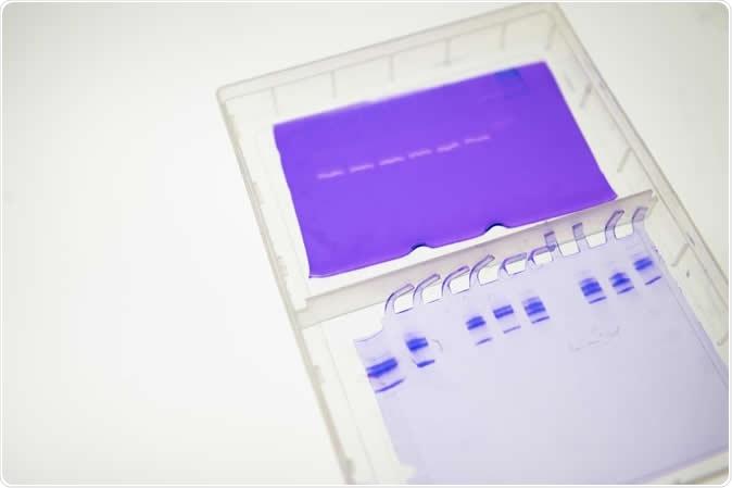 Cathepsins come afastado no colagénio e no elastin no laboratório da tecnologia de Geórgia de Manu Platt. Crédito de imagem: Tecnologia de Geórgia/Allison Carter