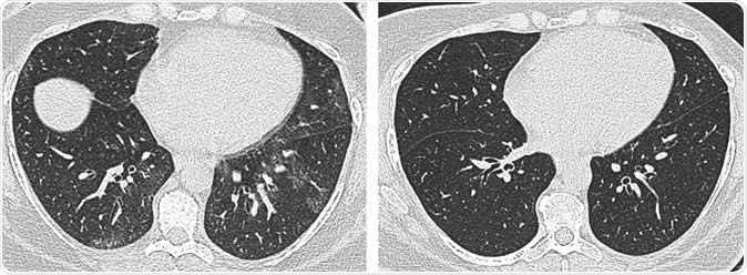 Axial unenhanced inspiratory CT images of the lungs in 51-year-old woman (a) before and (b) 6 months after bariatric surgery with 31-kg weight loss (body mass index decrease, 36.1%). The mosaic attenuation seen before surgery resolved after surgery.  Image Credit: Radiological Society of North America