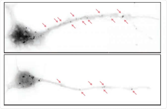 Depicted are hippocampal neurons from a normal mouse (above) and a mouse bred to lack the eIF4G microexon (below). In the latter, there are fewer particles representing paused protein synthesis machineries. In these mice, higher levels of protein synthesis in neurons lead to disrupted brain waves and autistic behaviors as well as cognitive deficits down the line. Image Credit: Thomas Gonatopoulos-Pournatzis