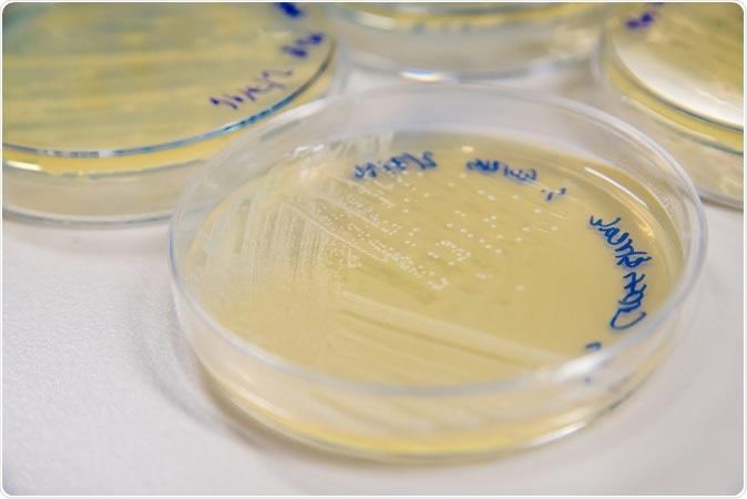 Methicillin-Resistant Staphylococcus aureus (MRSA) cross-streak culture on an agar plate. Image Credit: SubstanceTproductions / Shutterstock