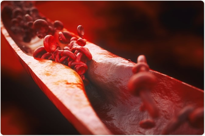 Closeup of a atherosclerosis- 3D rendering. Image Credit: Crevis / Shutterstock