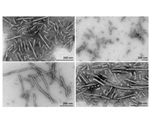 Alpha Synuclein Research Tools for Parkinson's Disease Research