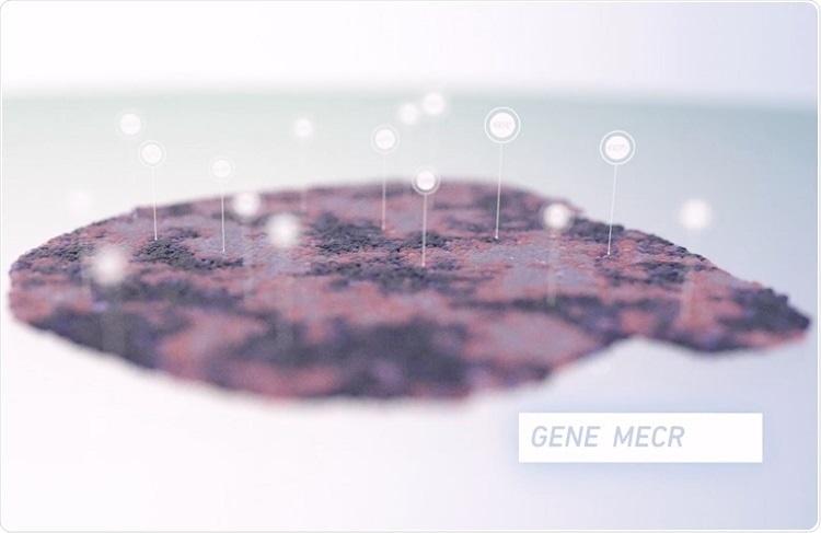 Perfilamento espacial da expressão genética